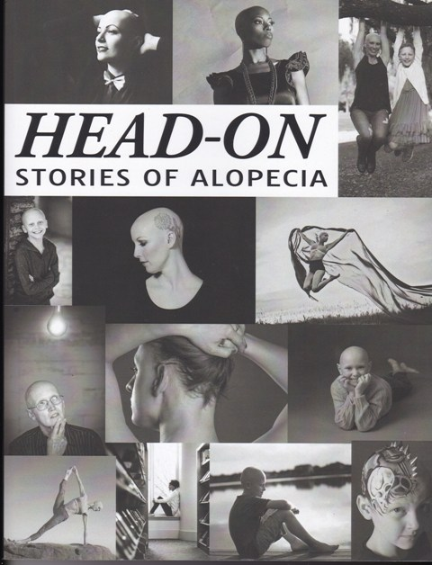 Image for Head-On Stories of Alopecia